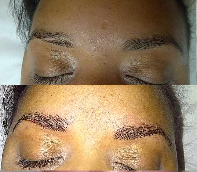 Permanent Makeup Gallery - Before & After Pictures